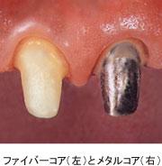 審美歯科|新横浜|アークデンタルクリニック